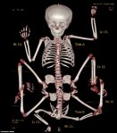 reincarnation-of-hindu-god-vishnu-xray-skeleton