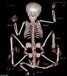 reincarnation-of-hindu-god-vishnu-xray-skeleton